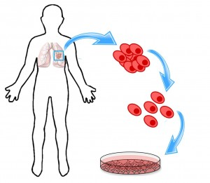 The process of making an in vitro cell culture. A cancer patient's tumour is biopsied or removed entirely. If they have consented to participate in the research study, their tumour mass is taken to a lab, where it is broken up (dissociated) into single cells. These cells are then put in a Petri dish with the researchers' media of choice. Cell cultures are grown in incubators, which are set at temperatures (i.e. 37°C) that mimic the human body. Components of this figure were taken from Scitable by Nature Education and Earth Times.