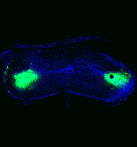 Rat spinal cord transplanted with green fluorescent protein (GFP) labeled neural progenitor cells. Credit: Mohamad Khazaei PhD, Scientific Associate, Fehlings Lab (Toronto)