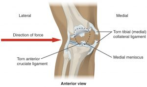 918_Knee_Injury
